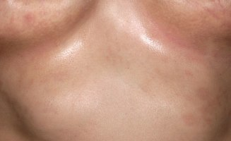 Invers psoriasis Ger rodnande utslag med en glansig yta i hudveck som ljumskarna, armhålorna, och under brösten. Är ofta väl avgränsad, röd och blank och fjällar inte. Bild: Dr Harout Tanielian/SPL.