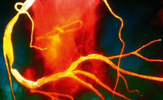 Hjärtats kranskärl kan drabbas av förträngning hos patienter som lider av svår psoriasis. Bild: ZEPHYR/SPL.