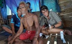 Artikelförfattaren mäter med ultraljud hur stor mjälten är på dykaren Dodi, 75 år, i byn Sampela, Indonesien. Mjälten hjälper till under dykning genom att släppa ut röda blodkroppar. Bild: Erik Abrahamsson.